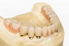 Dental prothesis Stock Photos