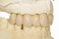 Dental prothesis Royalty Free Stock Photos