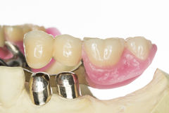 Dental prothesis Royalty Free Stock Images