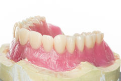 Dental prothesis Stock Images