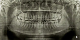 Dental Radiograph X-Ray. After remove the impacted tooth Stock Photos