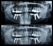 Dental radiography Stock Photos
