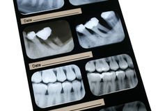 Dental X-ray. Films for dentist Royalty Free Stock Photos