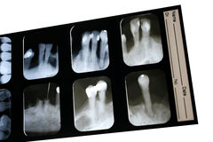 Dental X-ray. Films for dentist Stock Images