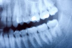 Dental x-ray. A dental x-ray detail Royalty Free Stock Image