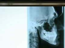 Dental X-ray. X-ray of human teeth Royalty Free Stock Photo