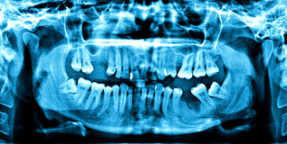 DENTAL X-RAY. Affected wisdom teeth, tooth decay and teeth showing çekimiş Panoral Dental X-Ray Stock Photography