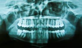 Dental X-Ray. A full spectrum x-ray of the teeth Royalty Free Stock Photos