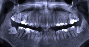 Dental X-Ray. A panoramic dental X-ray of a mouth with lots of fixed cavities, edited for best visibility. Wisdom teeth visible on the extreme edges stock photos