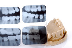 Dental X-Ray And Casting. Dental x-ray with full mouth casting for dentures royalty free stock photo