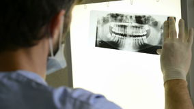 Dental x-ray stock video footage