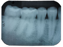 Dental x-ray film showing teeth Stock Images