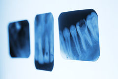 Dental x-ray images on the white panels. Stock Images