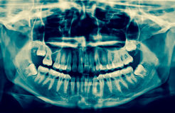 Dental X-Ray. A panoramic x-ray of a mouth, with intact wisdom t. Eeth, one of which is severely impacted stock images