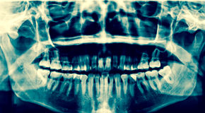 Dental X-Ray. A panoramic x-ray of a mouth, with intact wisdom t. Eeth, one of which is severely impacted royalty free stock photo