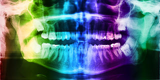 Dental X-Ray Photo Of Human Teeth Stock Photos