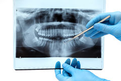 Dental X-ray. Dental radiography on white background Stock Images