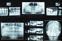 Dental X-Ray. A set of dental X-Ray images in a laboratory Royalty Free Stock Photography