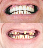 Dental rehabilitation Stock Image