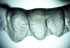 Dental retainers tooth brackets invisible braces Royalty Free Stock Images