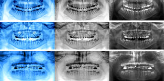 Dental scan , types of fixed appliances Royalty Free Stock Images