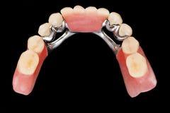 Dental skeletal prosthesis - upper vew Royalty Free Stock Images