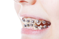 Dental steel braces on teeth close up. During orthodontic treatment Stock Photo