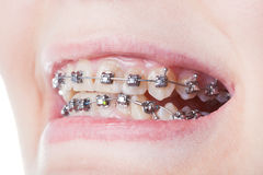 Dental steel brackets on teeth close up. During orthodontic treatment Stock Image