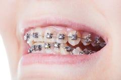 Dental steel brackets on teeth close up Stock Image