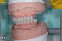 Dental surgery Royalty Free Stock Images