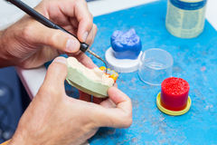Dental technician modeling a wax bridge Stock Image