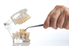 Dental technician placing the fixed partial denture. Dental bridge on the screw implants, close-up. Dentists tooth model with screw implant for teaching Royalty Free Stock Image