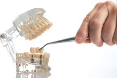 Dental technician placing the fixed partial denture. Dental bridge on the screw implants, close-up. Dentists tooth model with screw implant for teaching Royalty Free Stock Photos