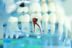 Dental teeth dentist model. Dental teeth, mouth, gums dentists teaching model showing each tooth and root canal decay and inflamation Stock Images