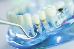 Dental teeth dentist model Royalty Free Stock Photo