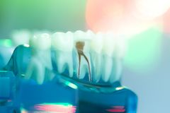 Dental teeth dentists model Royalty Free Stock Image
