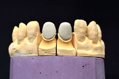 Dental teeth implant Royalty Free Stock Images