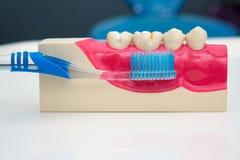 Dental Teeth Model and dental tool Royalty Free Stock Image