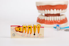 Dental Teeth Model and dental tool Stock Image