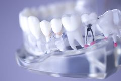Dental teeth mouth model Royalty Free Stock Images