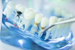 Dental teeth dentist model Royalty Free Stock Photos