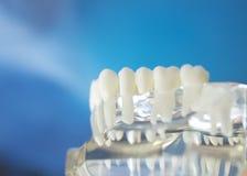 Dental teeth mouth model Stock Photo