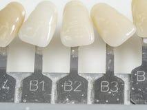 Dental teeth samples, dental color shade Royalty Free Stock Images