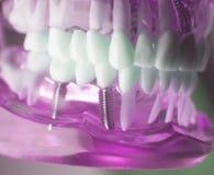 Dental titanium implant screw Stock Image
