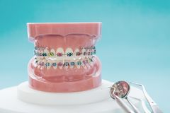 Dental tools and orthodontic model. Orthodontic model and dentist tool - demonstration teeth model of varities of orthodontic bracket or brace royalty free stock photo