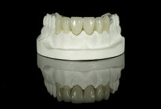 Dental Tooth Bridge Royalty Free Stock Photo