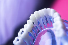 Dental tooth health decay Royalty Free Stock Photography