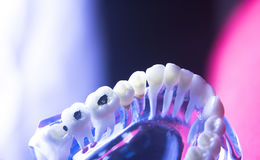 Dental tooth health decay Royalty Free Stock Photos