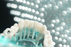 Dental tooth plaque decay Stock Image