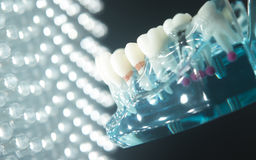 Dental tooth plaque decay Royalty Free Stock Photography